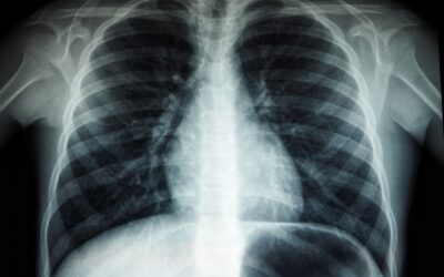 Røntgenteknologien: Hvad kan den egentlig?
